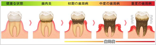 歯周病の進行図